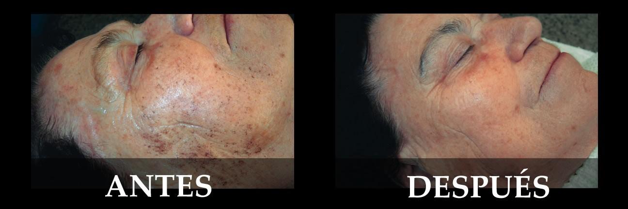 manchas de la piel